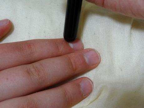 電子鍼を使う方法