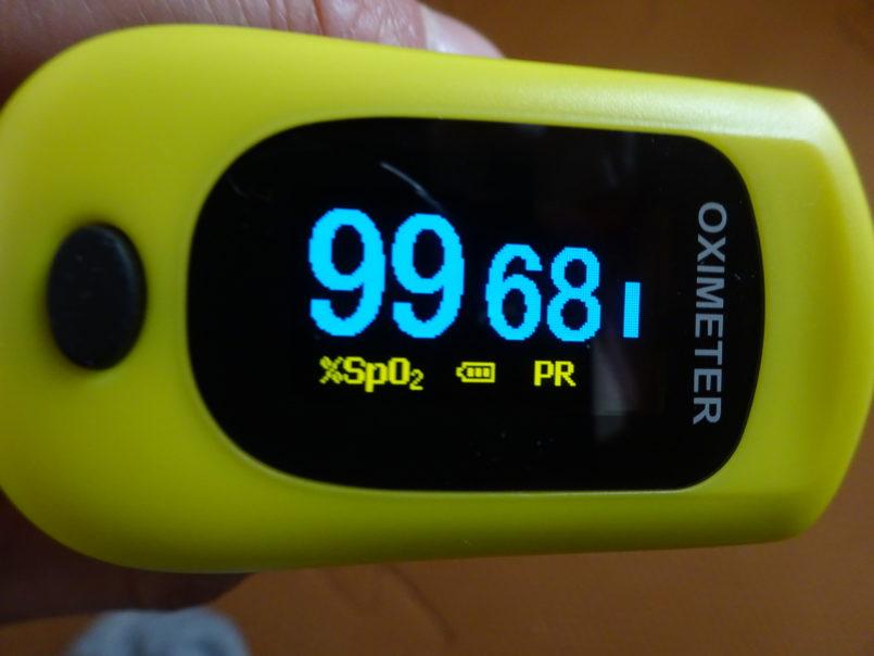 パルスオキシメーター(歯愛メディカル)は動脈血酸素飽和度(%SpO2)や脈拍数(PRbpm)PI値など血流を測定できる機器