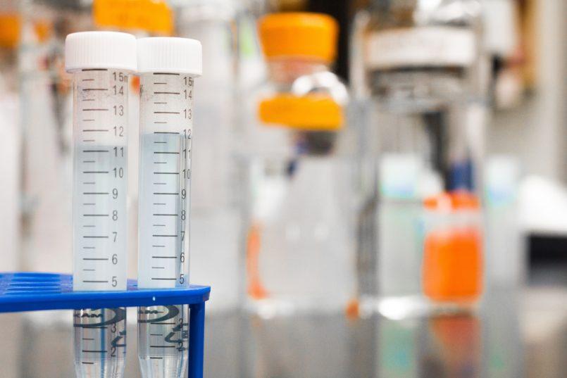 遺伝子検査キットは唾液で遺伝子の型を調べ病気のかかりやすさや体質、子供の能力などを調べることに期待されています